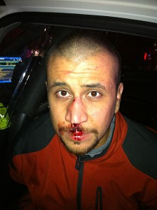 George_Zimmerman_front_of_head